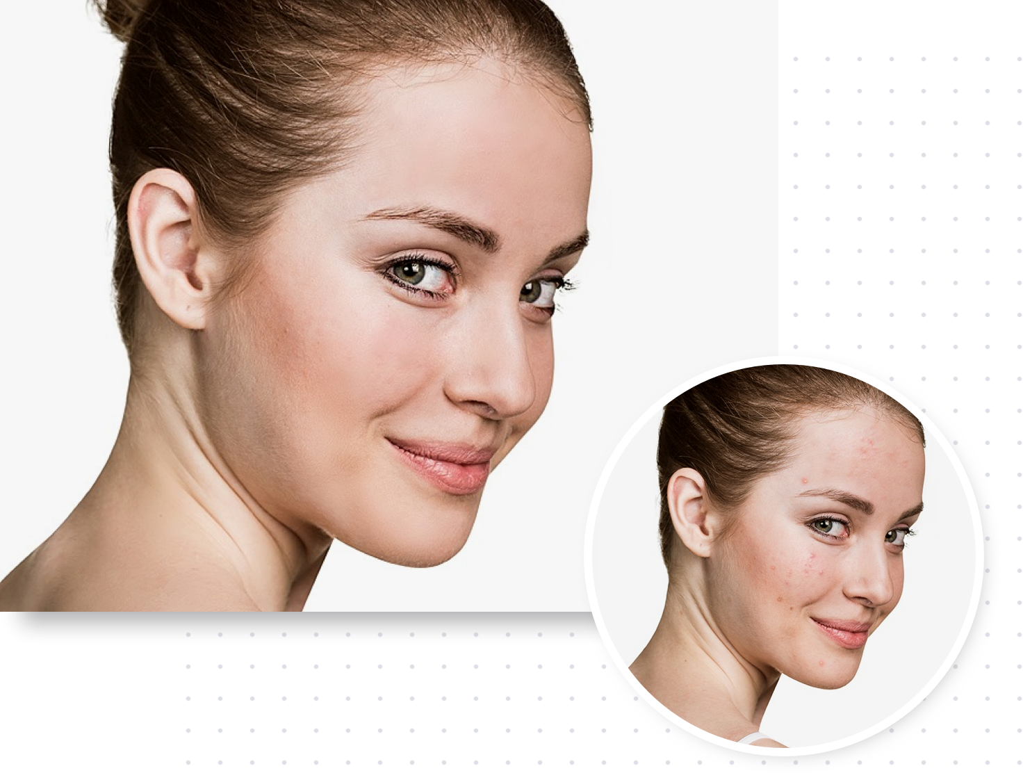 Touch Up | BeFunky: Image Retouching & Face Editor
